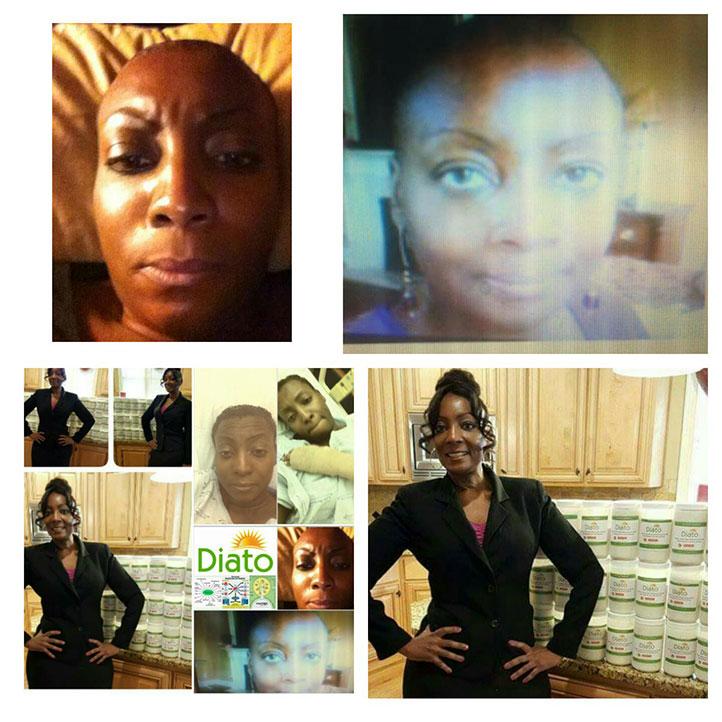 Felicia Allen cancer story